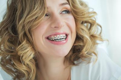 Woman smiling after getting adult braces